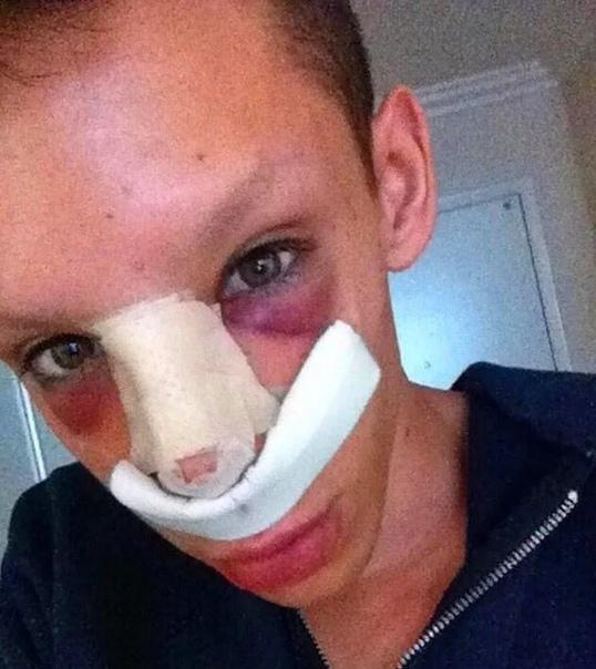 22-летний парень продолжает идти к своей мечте и почти ежемесячно делает косметические процедуры, что бы быть похожим на