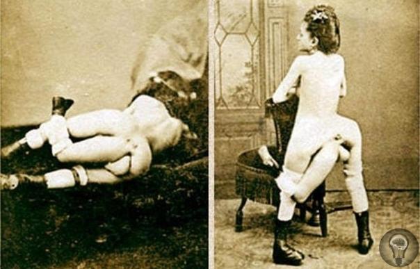 Бланш Дюма - трехногая куртизанка с четырьмя грудями (18,) Об этой женщине известно совсем немного, вероятно потому, что в эпоху Цирков Уродов она не выступала по всему миру перед зрителями, а