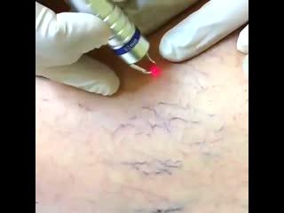 Удаление сосудистых сеточек на лице и теле. Академия красоты. Севастополь