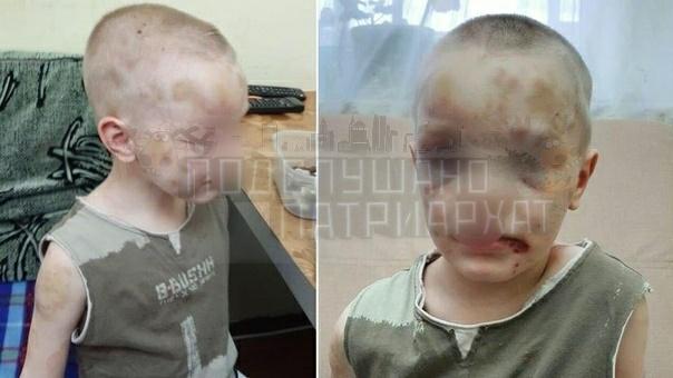 Шмамаша избивала малолетнего ребёнка В Дновороссийске нашли очередную шмамашу, у которой напрочь отсутствуют какие-либо чувства к своему ребёнку, не говоря уже о материнском инстинкте.